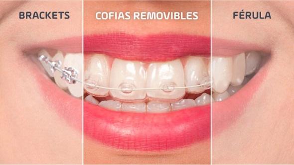 Comparacion-ortodoncias
