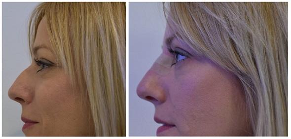 Perfeccionamiento nasal sin cirugía.